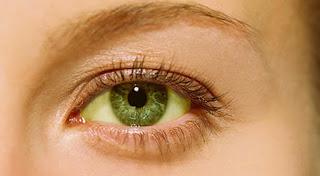 Cara Memutihkan Mata Kuning Secara Alami Agar Cerah Dan Sehat