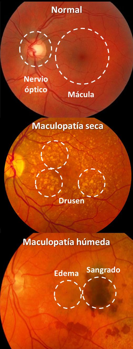 Mácula normal y con maculopatías seca y húmeda
