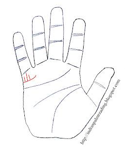 Children Lines Palmistry Wont Conceive Lines