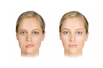 Ayurvedic treatment for facial palsy in Ernakulam