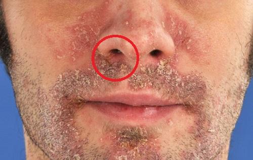 Tratamiento facial casero
