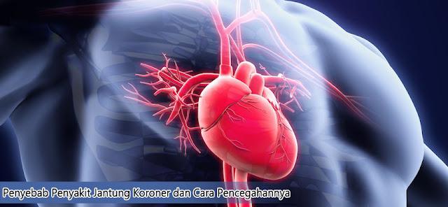 Penyebab Penyakit Jantung Koroner dan Cara Pencegahannya