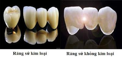 so sánh răng sứ kim loại và răng sứ không kim loại -10