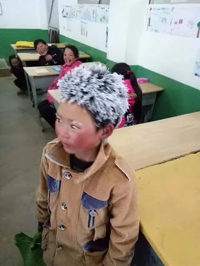 8 year old child comes to school with frozen hair