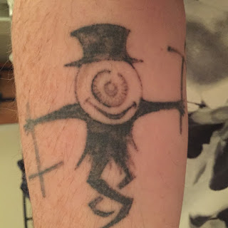 Black tattoo after two q-switched sessions