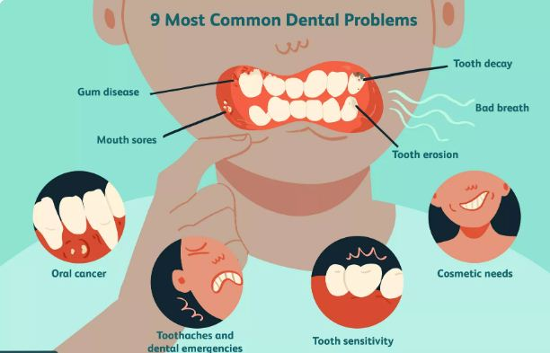 DENTAL HEALTH,  DENTAL CONDITIONS
