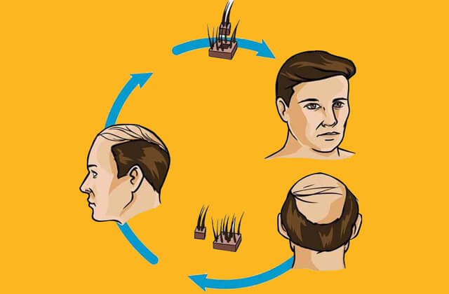 FUE Hair Transplant at 20rs Per Graft | Hair Transplant in Chandigarh