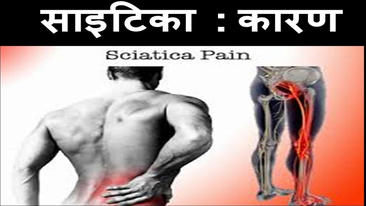 sciatica pain क्या है इसके कारण