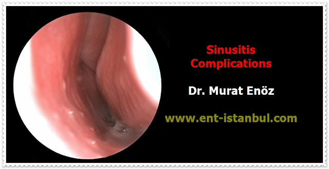 Definition of Sinusitis - Acute Sinusitis - Chronic Sinusitis - Signs and Symptoms of Sinusitis - Sinusitis Causes - Sinusitis Diagnosis - Complications of Sinusitis - Treatment of Sinusitis