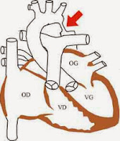 coarctation aortique infirmier