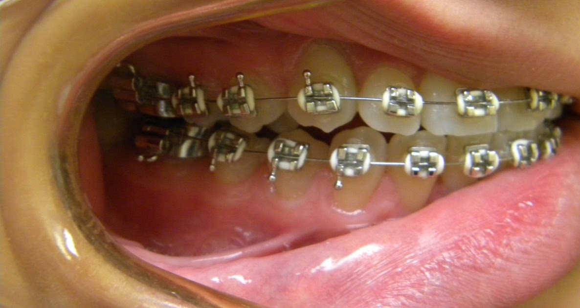 Practical Orthodontics More Questions And Answers