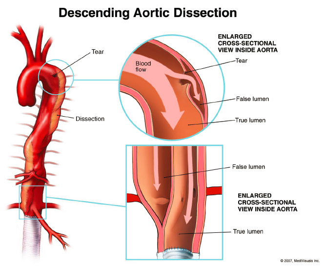 THORACIC AORTIC ANEURYSMS | Dip NB GENERAL SURGERY CLINICAL ...