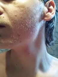 How To Increase Facial Hair 120