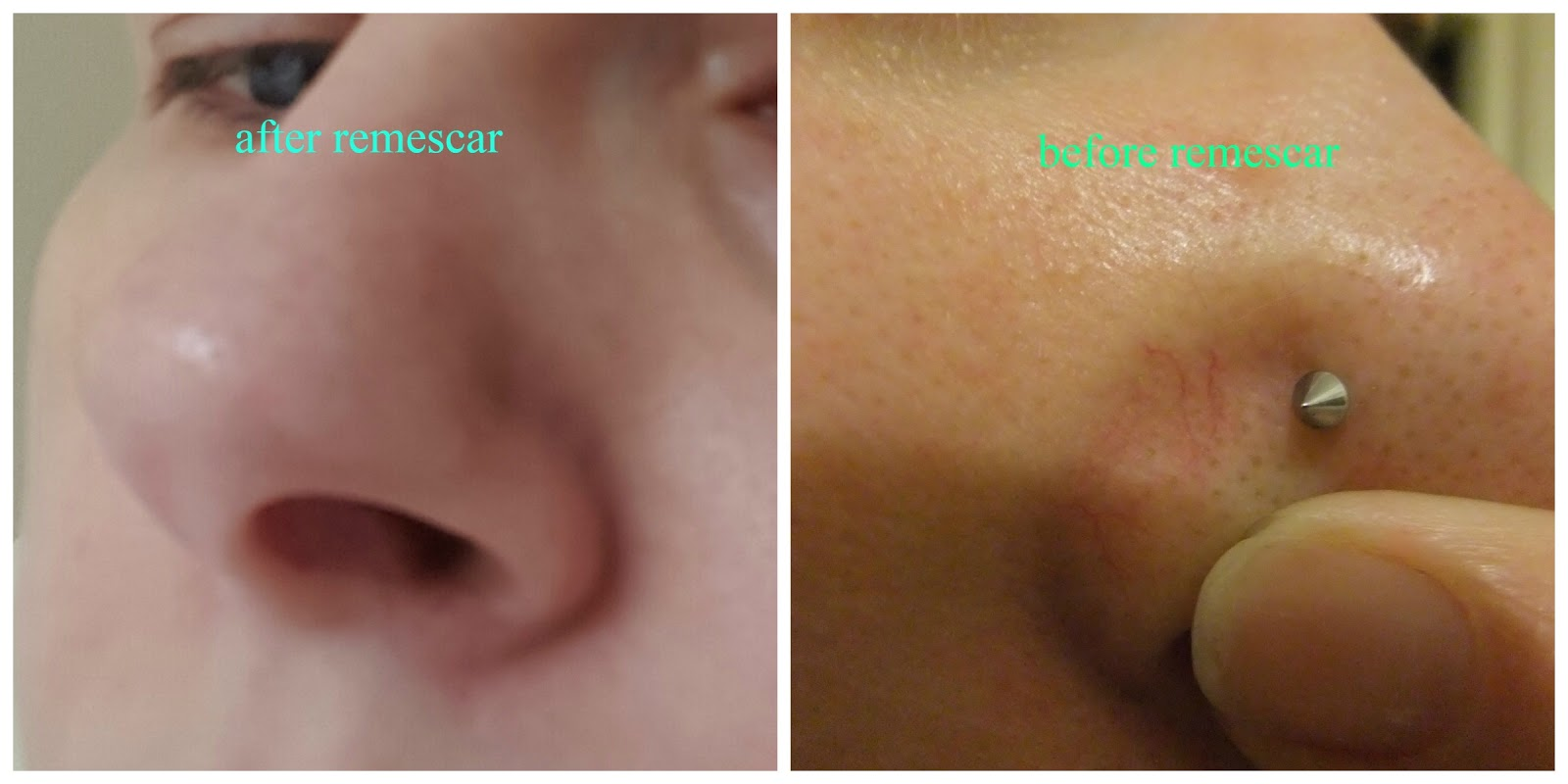 Facial thread vein cream