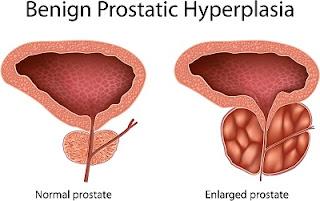 Makalah Asuhan Keperawatan Pada Benigna Prostat Hiperplasia Terbaru