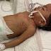 Tak Sempat Vaksin, Anak Tanggung Derita Demam Campak