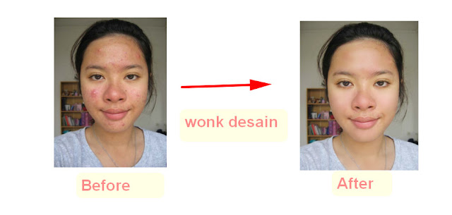 Cara menghilangkan jerawat di photoshop