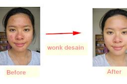 Cara Menghilangkan Jerawat Sampai Ke Bekas Di Photoshop