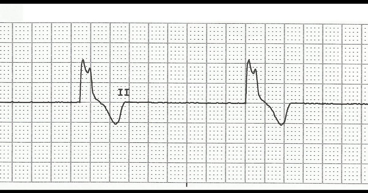 Float Nurse: ACLS review: Bradycardia Review Questions Part 2
