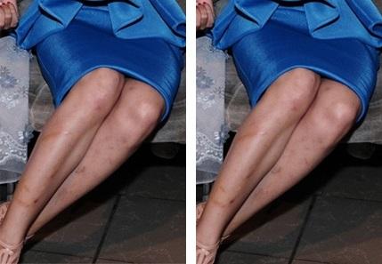 Cách trị sẹo thâm ở chân lâu năm hiệu quả