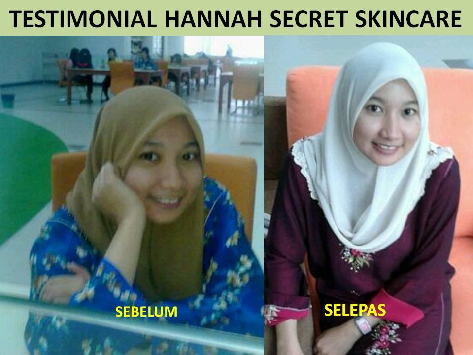 Hannah Secret