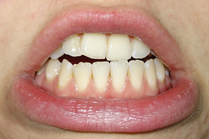 Say Braces Underbite Fixed With Braces Only