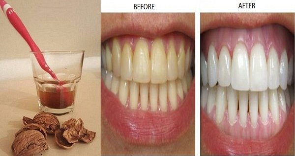 She Whitened Her Teeth Without Spending A Penny! All She Did Was Cook This Ingredient! The Results Will Amaze You