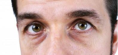 आँखों के निचे का कालापन