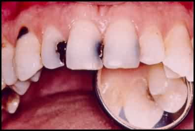 Healthy and Beauty Tips: How to Cure Cavities | Cavity ... имплантация