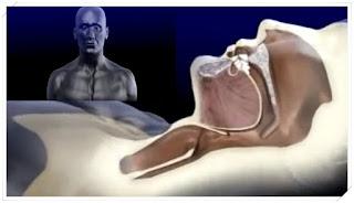 How is Sleep Apnea Revealed in Sleep? - Sleep Apnea Symptoms, Diagnosis, Treatment - Polysomnography (Sleep Test)