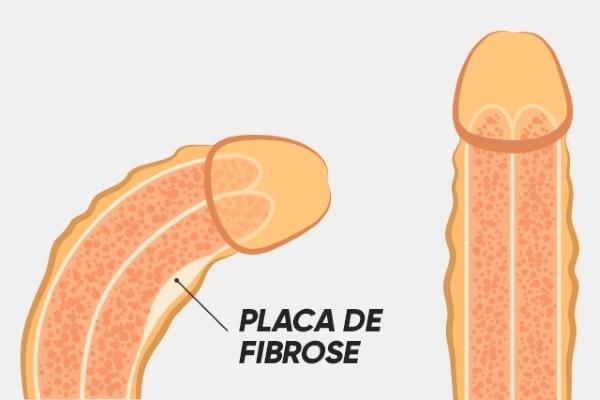 Doença de Peyronie (Curvatura Peniana)