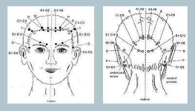 http://www.kateginting.com/2017/04/petua-hilangkan-sakit-kepala-tanpa-ubat.html
