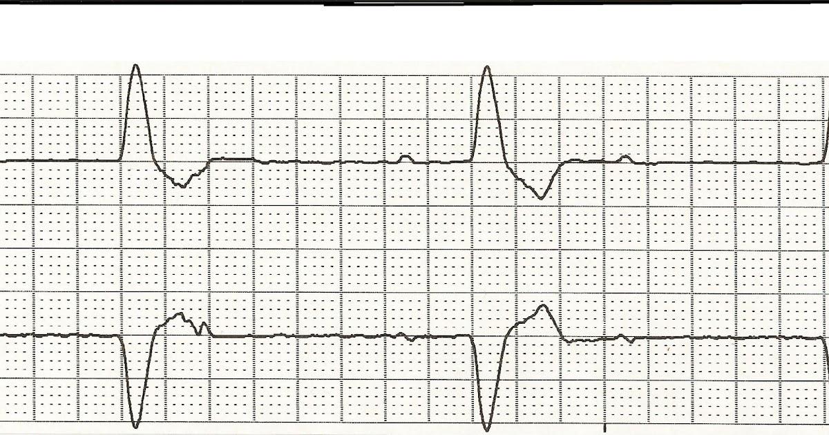 Float Nurse: ECG Rhythm Strip Quiz 79
