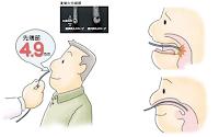 逆流性食道炎の胃カメラ検査
