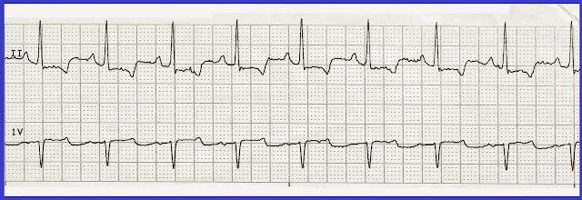 Float Nurse: Practice EKG Rhythm Strips 227