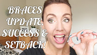 http://www.wagdoll.co.uk/2016/07/adult-braces-update-week-8-success.html