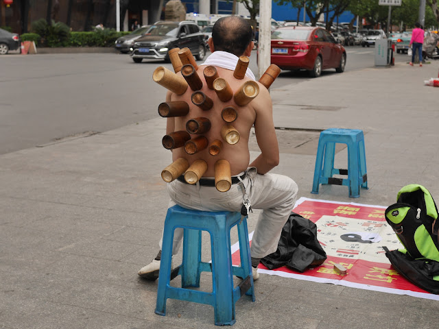 back of man receiving cupping therapy using bamboo cups