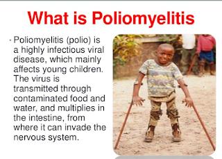 https://mustahabbah.blogspot.com/2017/08/poliomyelitisgejalapenyebab-serta.html