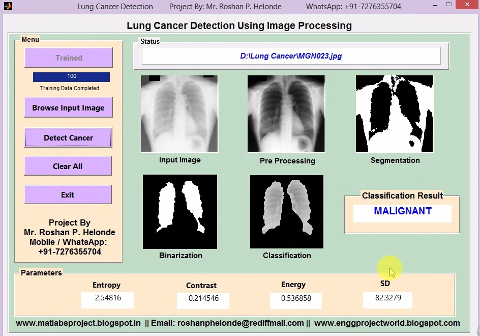 Matlab Code for Lung Cancer Detection Using Image Processing Full
