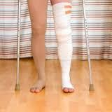 Obat Patah Tulang AMPUH Mempercepat Penyembuhan Tulang Patah