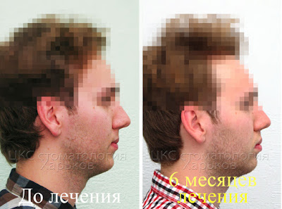 Лицо пациента, лечение без удаления зубов