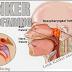 Karsinoma Nasofaring Definisi Penyebab Dan Pengobatan Serta tanda Gejala Karsinoma Nasofaring Menurut Ilmu Kedokteran