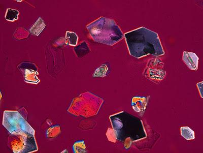 Red grape under polarizing microscope, Infinity X-32 camera. PHOTO: Dr. Robert Rock Belliveau