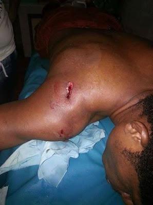 Mantan Bek Persipura Jadi Korban Insiden di dDepan Makorem 172/PWY Jayapura