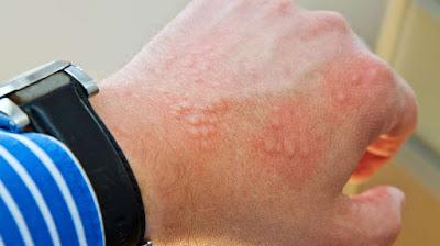 cara menyembuhkan alergi kulit bentol