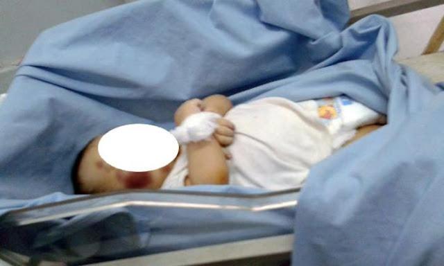 Sempat Kritis, Bayi 9 Bulan Meninggal Usai Mendapat Perlakuan Mengerikan Ini