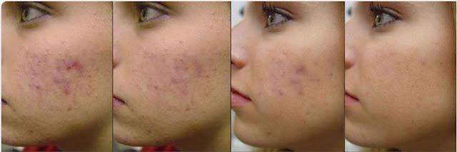 cauze si tratament pentru acnee