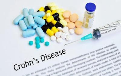 Temuan Baru Tawarkan Harapan Untuk Penyakit Crohn