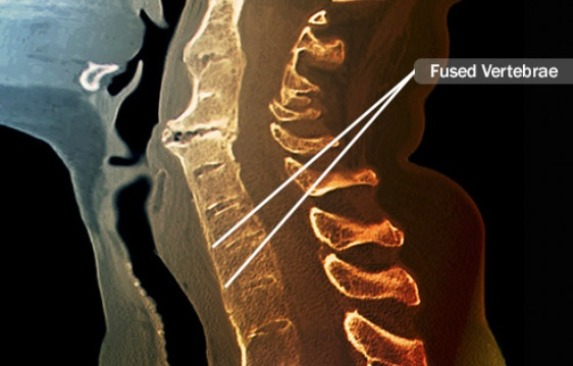 Fused Vertebrae in Ankylosing Spondylitis