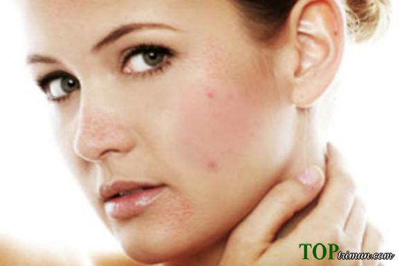 5 cách trị mụn bằng thảo dược thiên nhiên an toàn cho làn da bạn